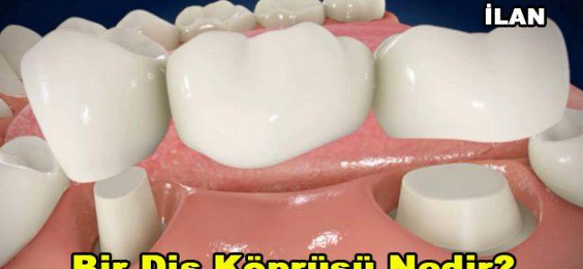 Bir diş köprüsü nedir?