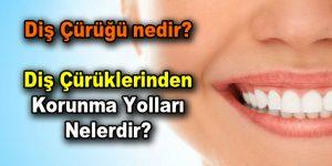 Diş Çürüğü nedir? Diş Çürüklerinden korunma yolları nelerdir?