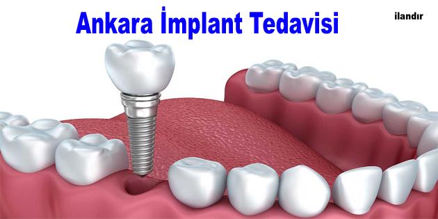 Ankara implant tedavisi nasıl yapılır aşamalar nelerdir?