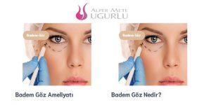 Göz Altı Torbası Ameliyatı