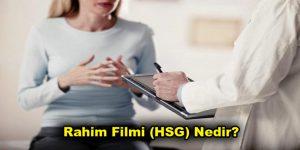 Rahim Filmi (HSG) Nedir? Rahim Filmi (HSG) Hangi Durumlarda Uygulanır?